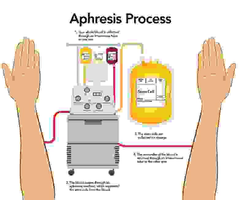 Рисунок 4. Процесс аферезиса, когда сначала забирается у донора кровь, а потом возвращается но без гематопоэтических стволовых клеток