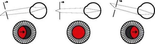 Скиаскопия глаза при астигматизме