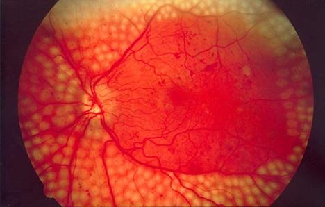 Панретинальная лазерная коагуляция сетчатки глаза