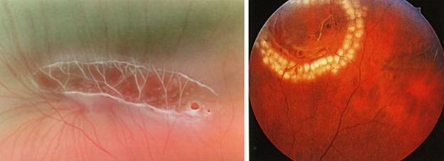 Дистрофии сетчатки глаза