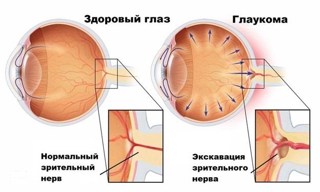 Атрофия зрительного нерва при глаукоме