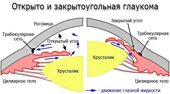 Открыто и закрытоугольная глаукома