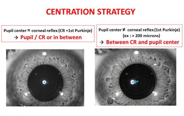 Центрация во время лазерной коррекции зрения