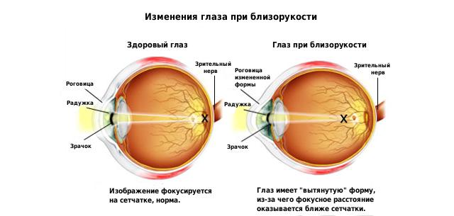 Метод бейтса. зрение без очков