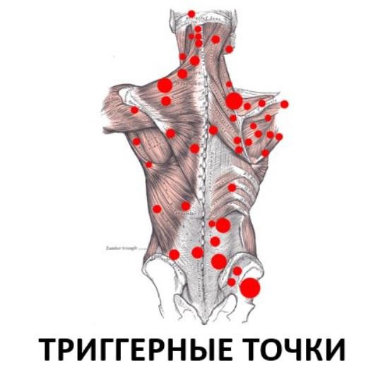 Программирование нервной системы человека. Триггерные точки