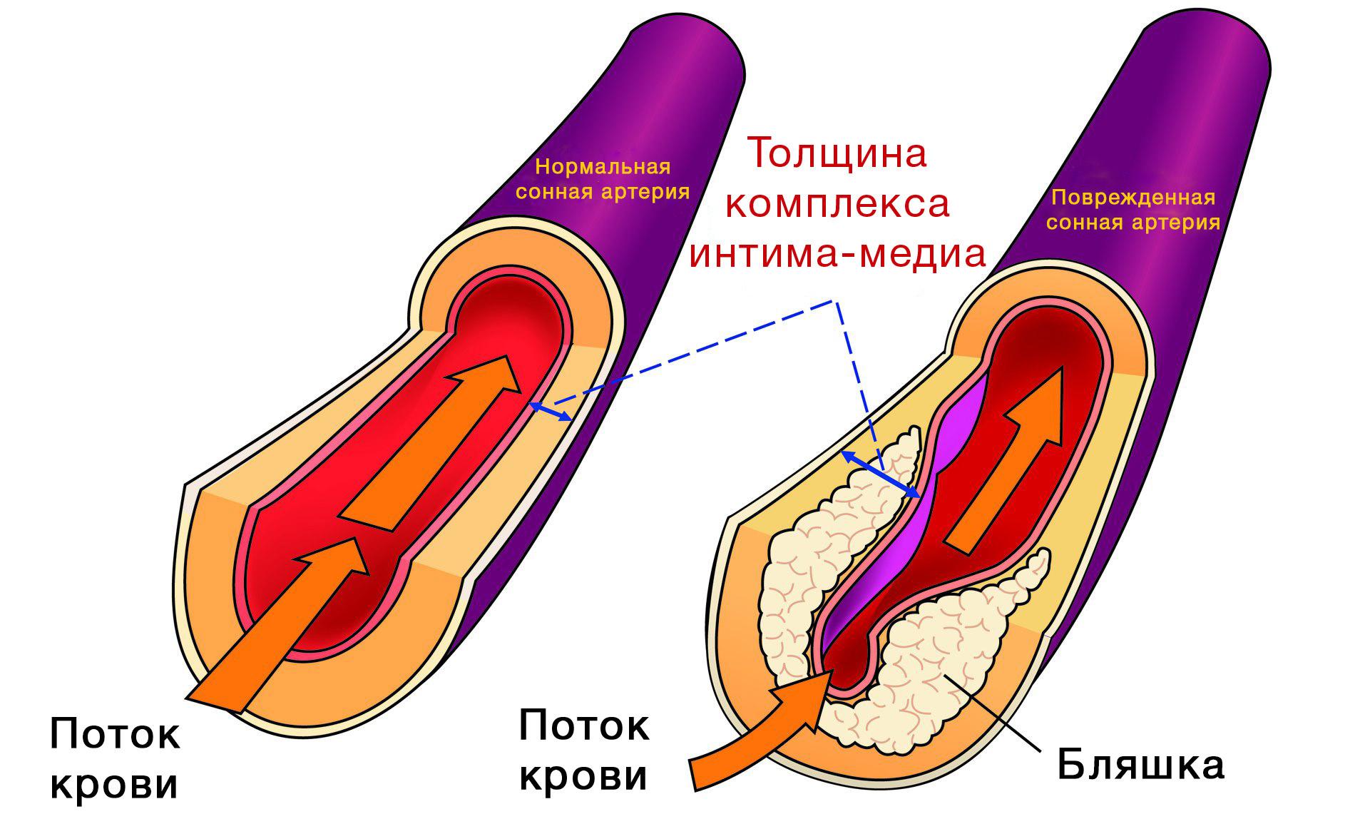 методика измерения толщины комплекса интима медиа-кз2
