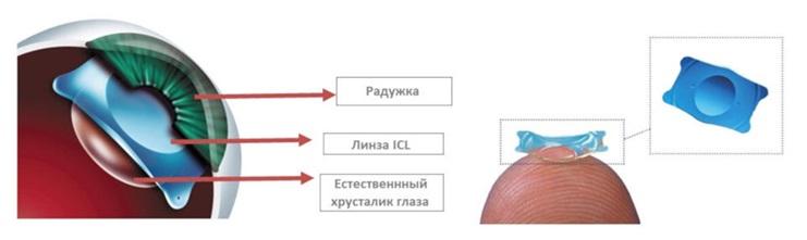 Имплантация факичных заднекамерных контактных линз ICL