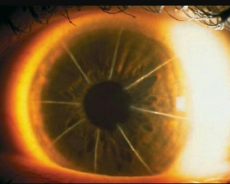 Corneal scars after radial keratotomy