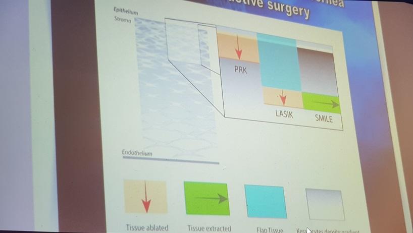 Comparison of laser vision correction methods