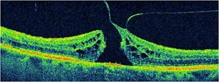Оптическая когерентная томография сетчатки