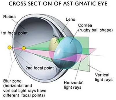 Causes of poor vision in astigmatism