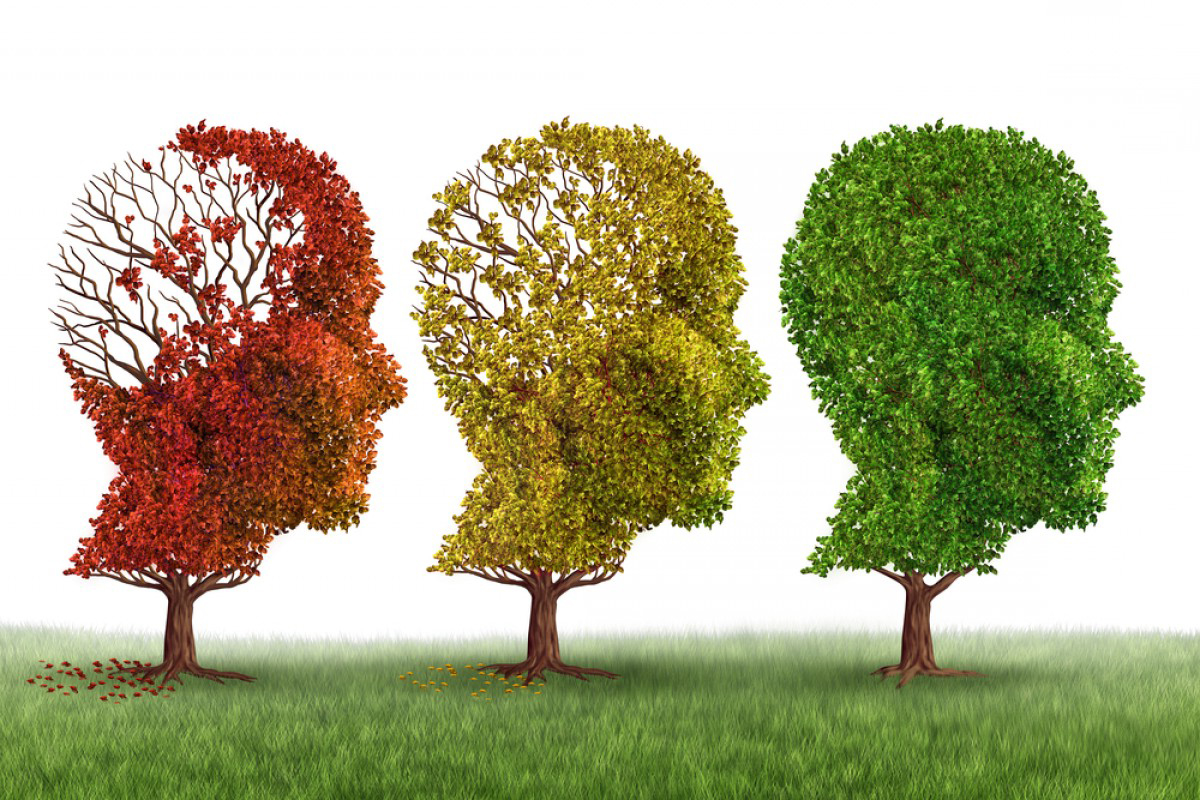 Clinical trials have shown a reduction in progression of Alzheimer's disease by more than half