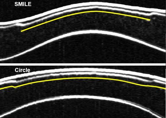 Разница между технологиями ReLEx SMILE и методом CIRCLE