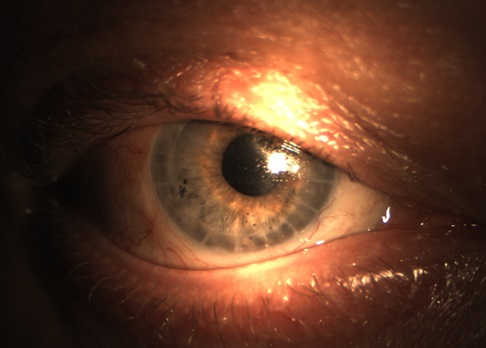 Das Auge des Patienten nach der Operation