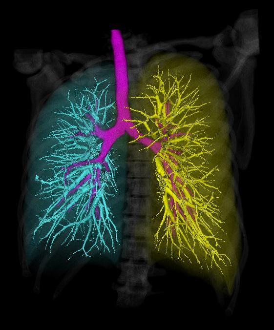 Автоматическая сегментация дыхательных органов