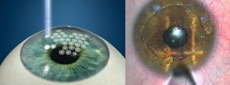 PRK - photorefractive keratectomy