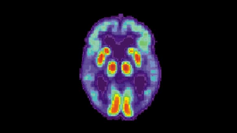 Искусственный интеллект научился находить болезнь Альцгеймера в мозге за 6 лет до диагноза