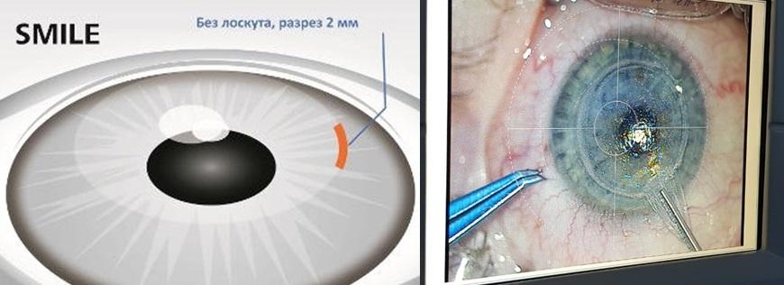 Laser vision correction ReLEx SMILE