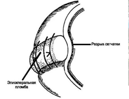 Эписклеральное пломбирование сетчатки при отслойке