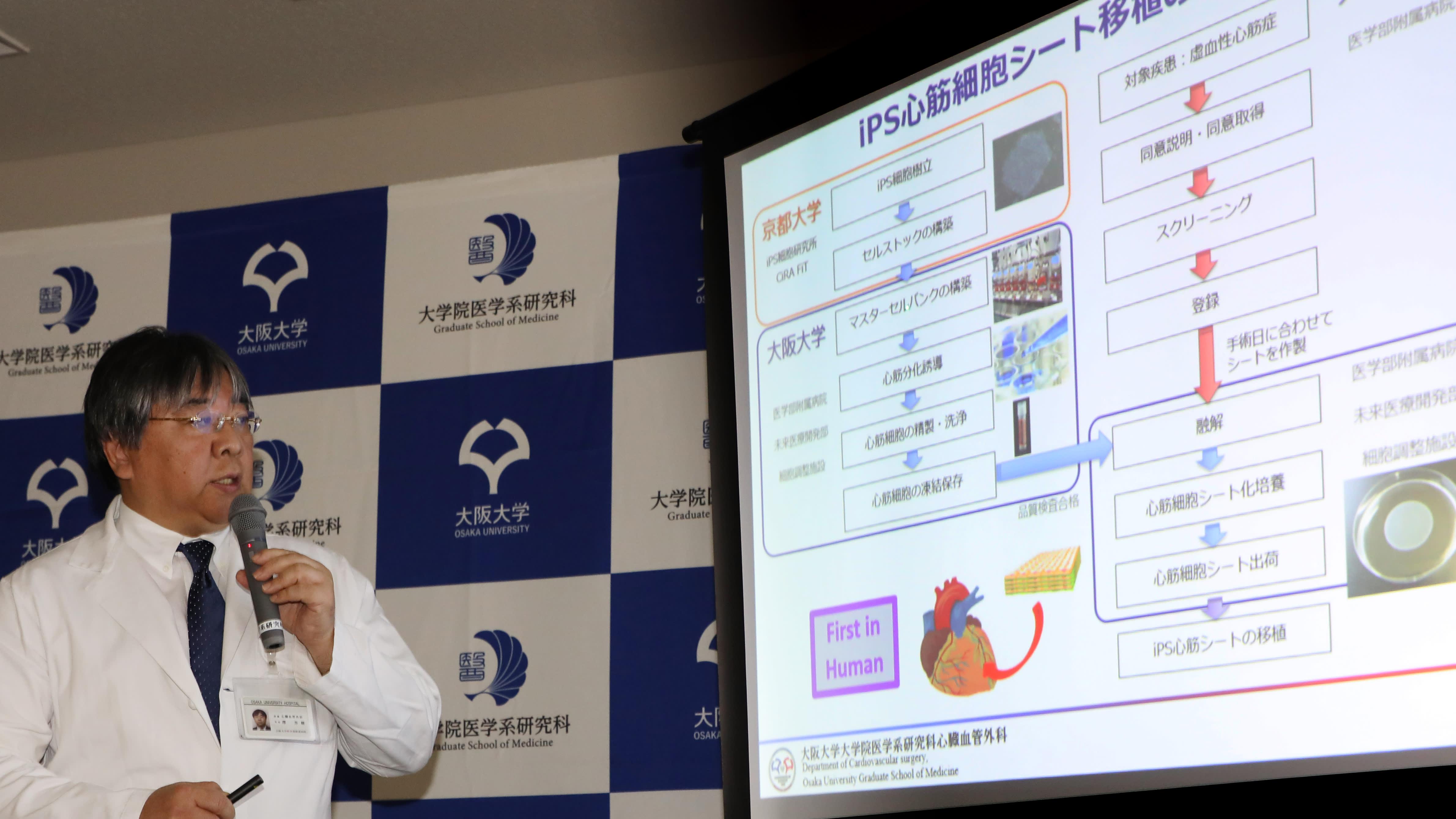 В Японии анонсировали клинические испытания биоинженерной заплатки на сердце