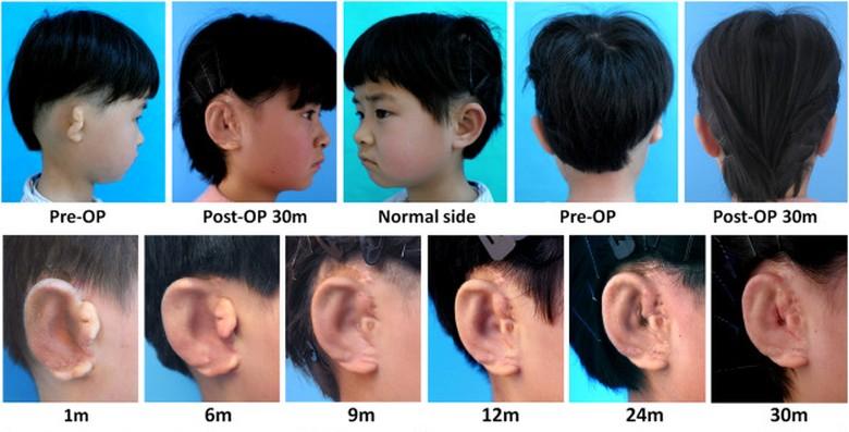 Китайские врачи вырастили детям новые уши