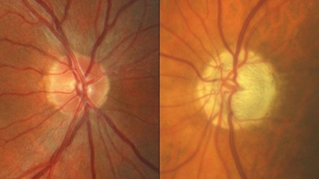 Бледные диски зрительных нервов при глаукоме