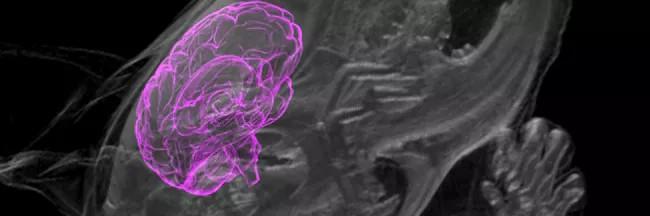 Органоиды мозга человека вживили в мозг живой крысы