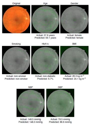 Нейросеть Google определяет пол, возраст, индекс массы тела, и артериальное давление по глазному дну