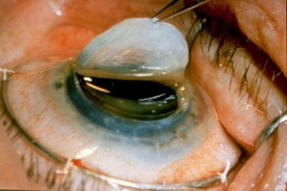 Кератопластика - пересадка роговицы