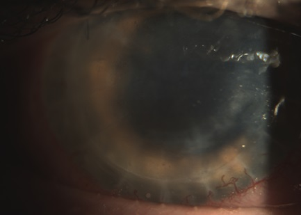 Hornhaut-Biomikroskopie