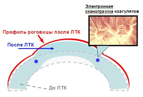 Thermokeratoplastik
