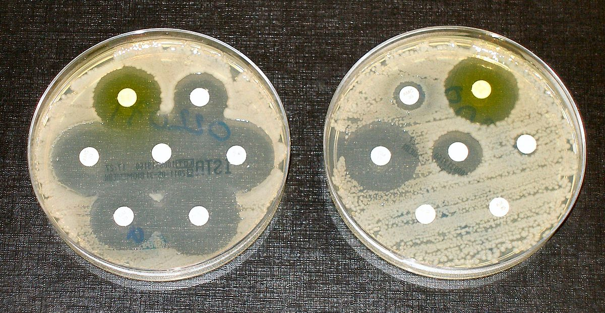 For the first time in 50 years, a new class of antibiotics acting on gram-negative bacteria