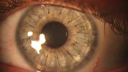 Пересаженная роговица глаза (после кератопластики)
