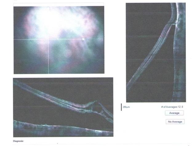 Оптическая когерентная томография сетчатки - ОКТ