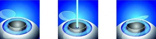 Laserkorrektur der Sicht LASIK