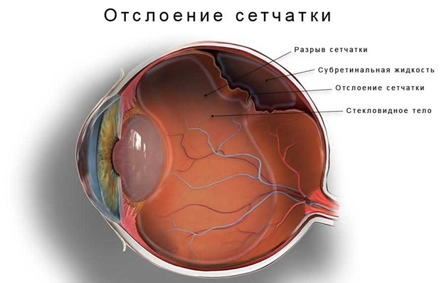 Отслойка сетчатки глаза
