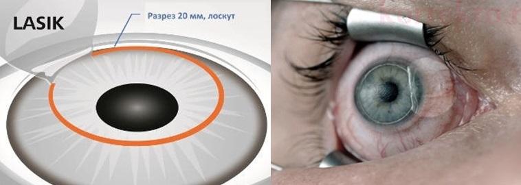 Eye surgery LASIK and FemtoLASIK