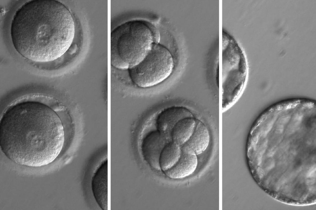 [Перевод] Генная инженерия эмбрионов человека станет безопасной и эффективной в течение двух лет