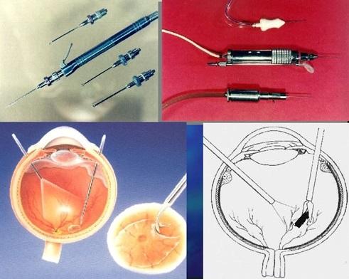 Инструменты для проведения операции витрэктомии сетчатки глаза
