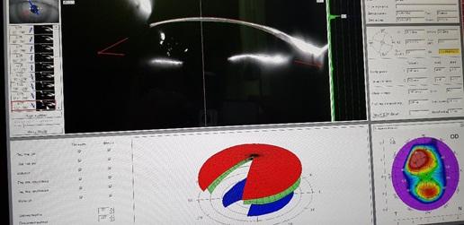 Hornhautkeratotopographie im sekundären Keratokonus